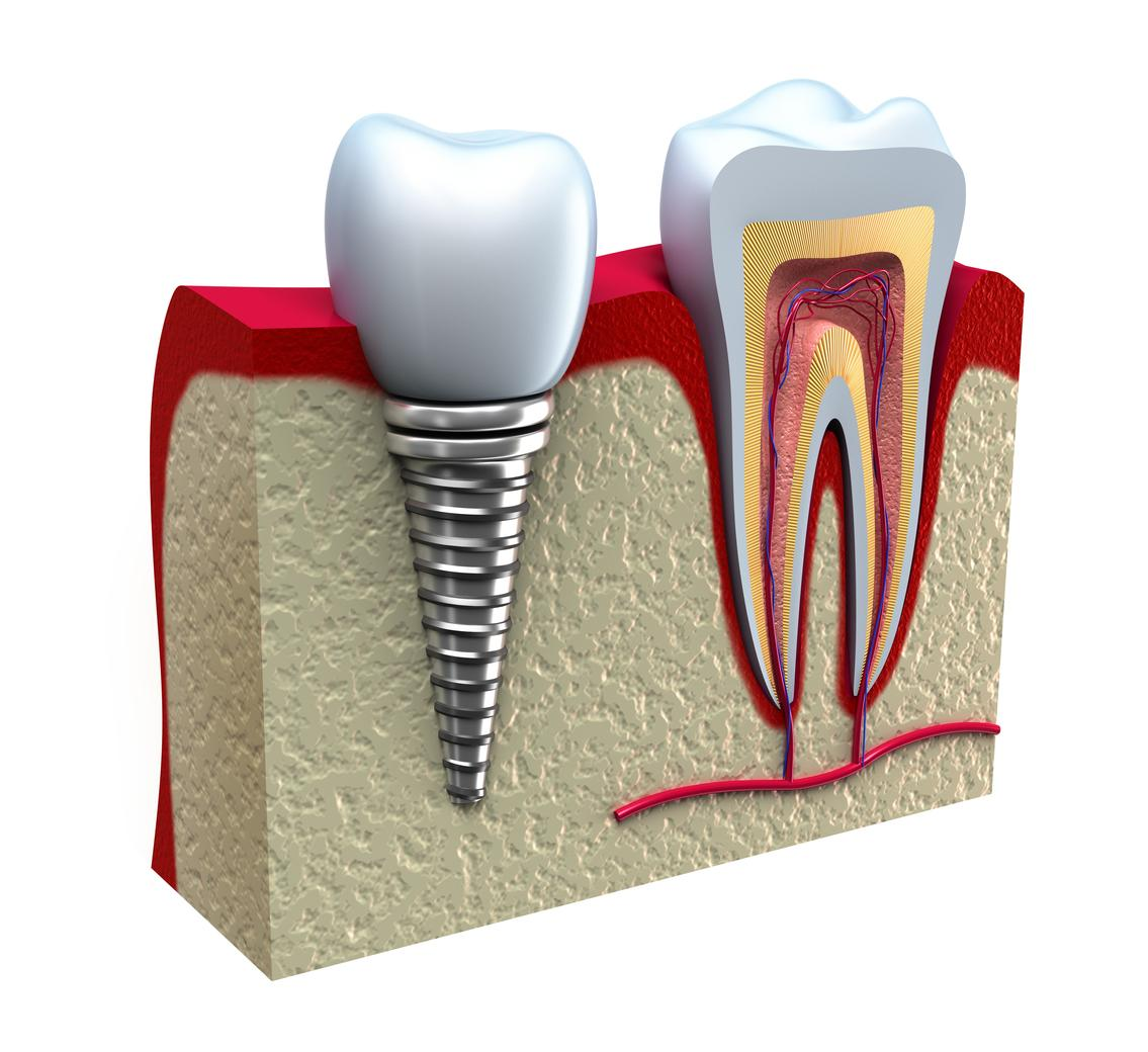 dental implants pikesville md