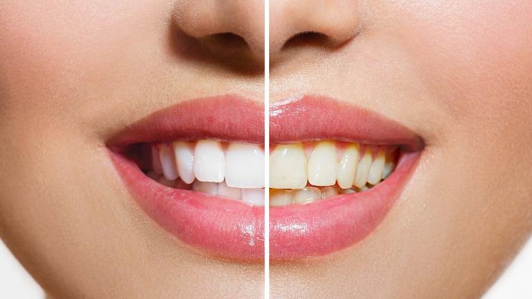 teeth whitening owings mills