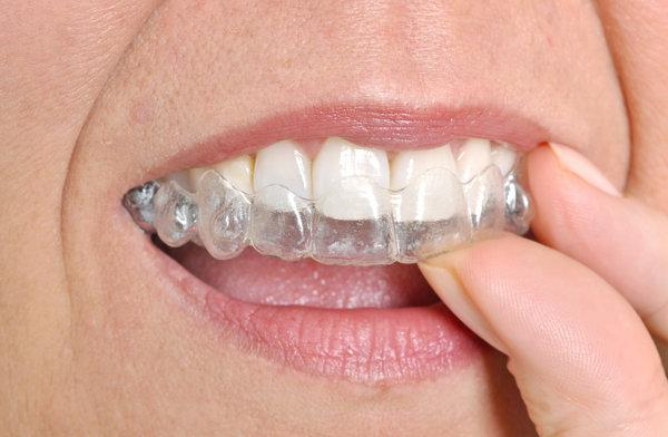 invisalign clear adult braces | Pikesville maryland
