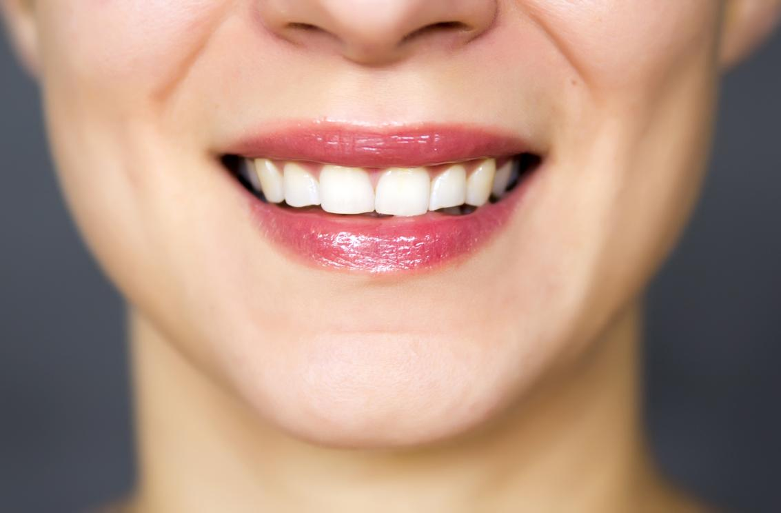 zoom whitening pikesville md