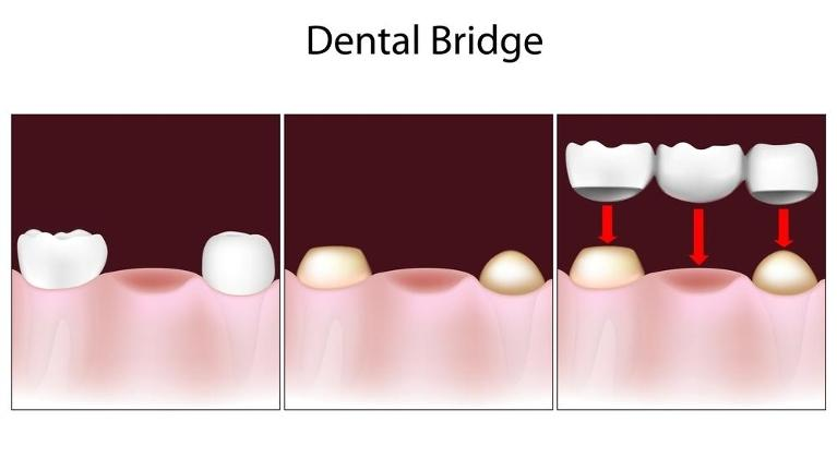 model of a dental bridge and how it fits in a row of teeth | Pikesville MD
