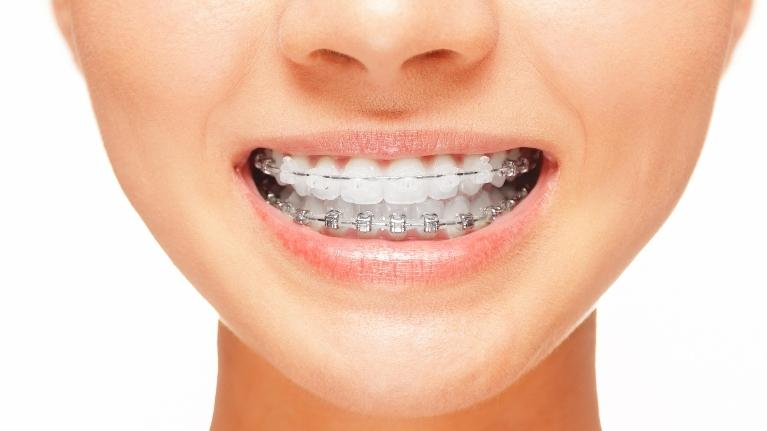 Naylors Court Dental Partners Blog Facts About Braces