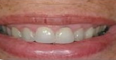 image of teeth before porcelain crowns | Pikesville MD