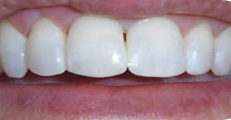 Image of the same teeth after cosmetic bonding | Pikesville MD