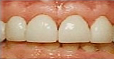 Image of the same teeth after porcelain veneers | Pikesville MD