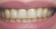 Image of teeth before Zoom! Whitening | Pikesville MD