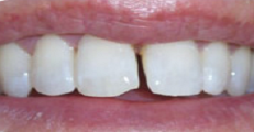 image of chipped teeth before cosmetic bonding | Pikesville MD