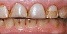 Image of stained teeth before whitening and alignment | Pikesville MD