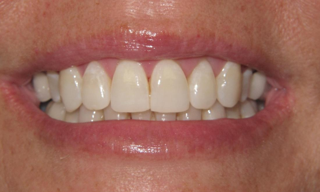 same teeth after Invisalign | Pikesville MD