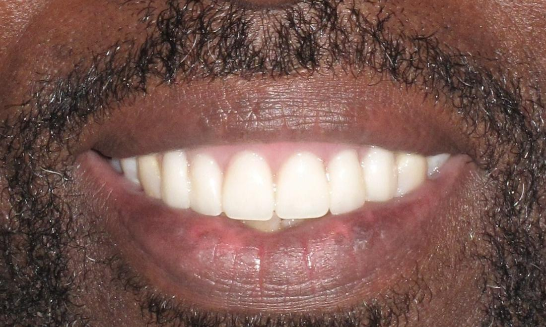 Image of the same teeth after a temporary partial denture | Pikesville MD