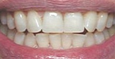 Image of the same teeth after Zoom! Whitening | Pikesville MD