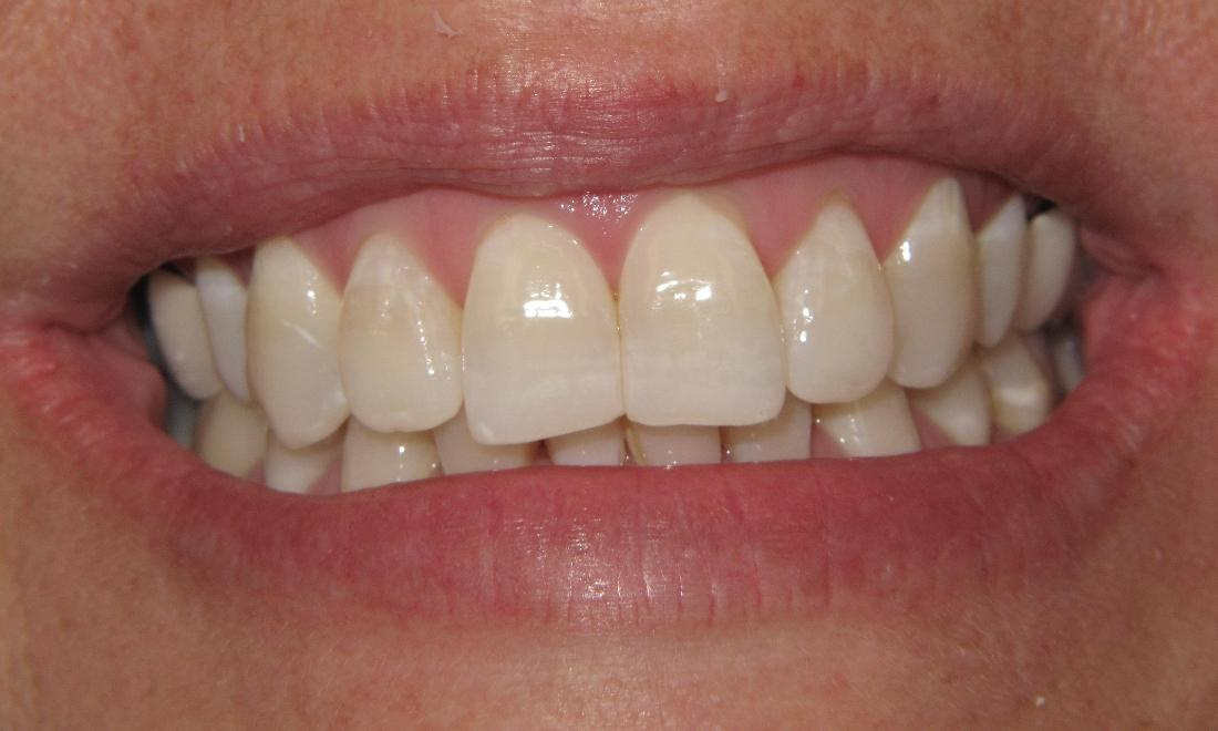 crooked teeth before Invisalign | Pikesville MD